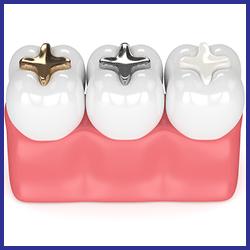 hàn răng trám răng