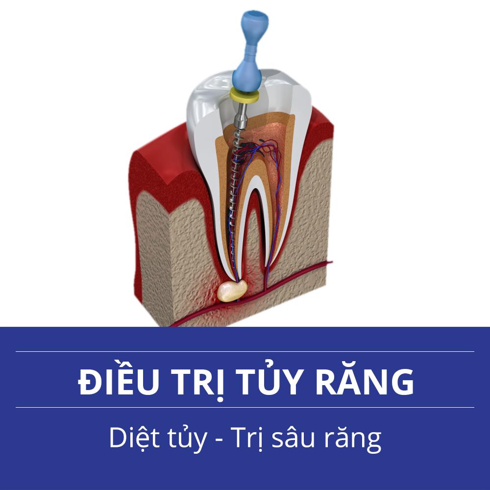 Dịch Vụ Nha Khoa - Điều trị tủy răng