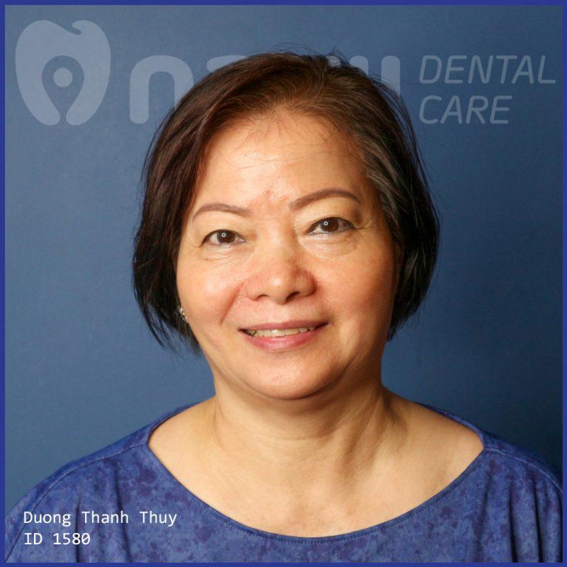càu răng sứ review